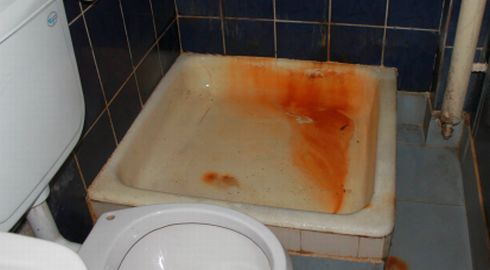 spital, duș la un spital județean