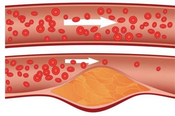 colesterol mărit, curățare artere